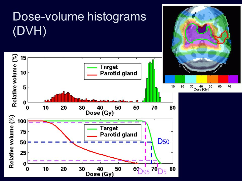 Nasopharyngeal carcinoma: dose to tumor 3D-CPT IMPT IMXT Case 2 Comparable target coverage