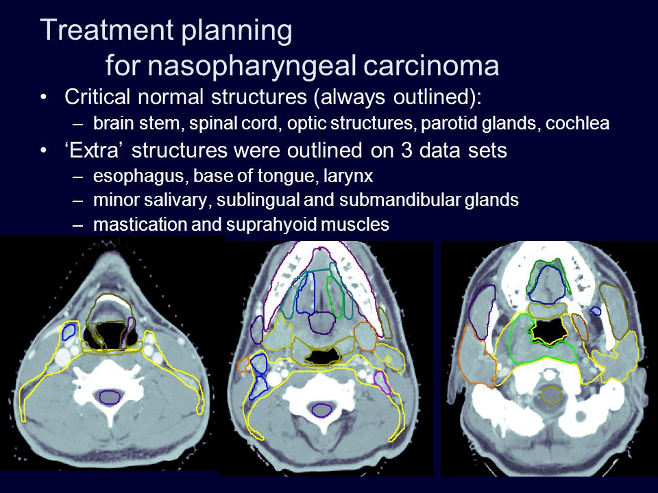 Treatment planning for nasopharyngeal carcinoma Critical normal structures (always outlined): –brain stem, spinal cord, optic structures, parotid glan