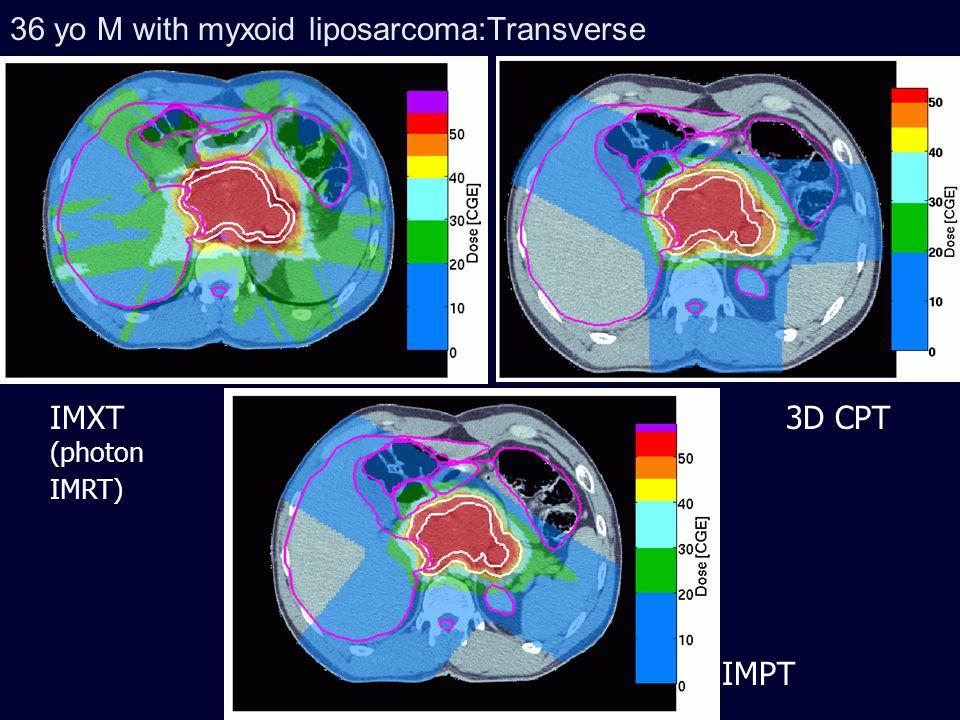 36 yo M with myxoid liposarcoma: Sagittal IMXT 3D CPT IMPT