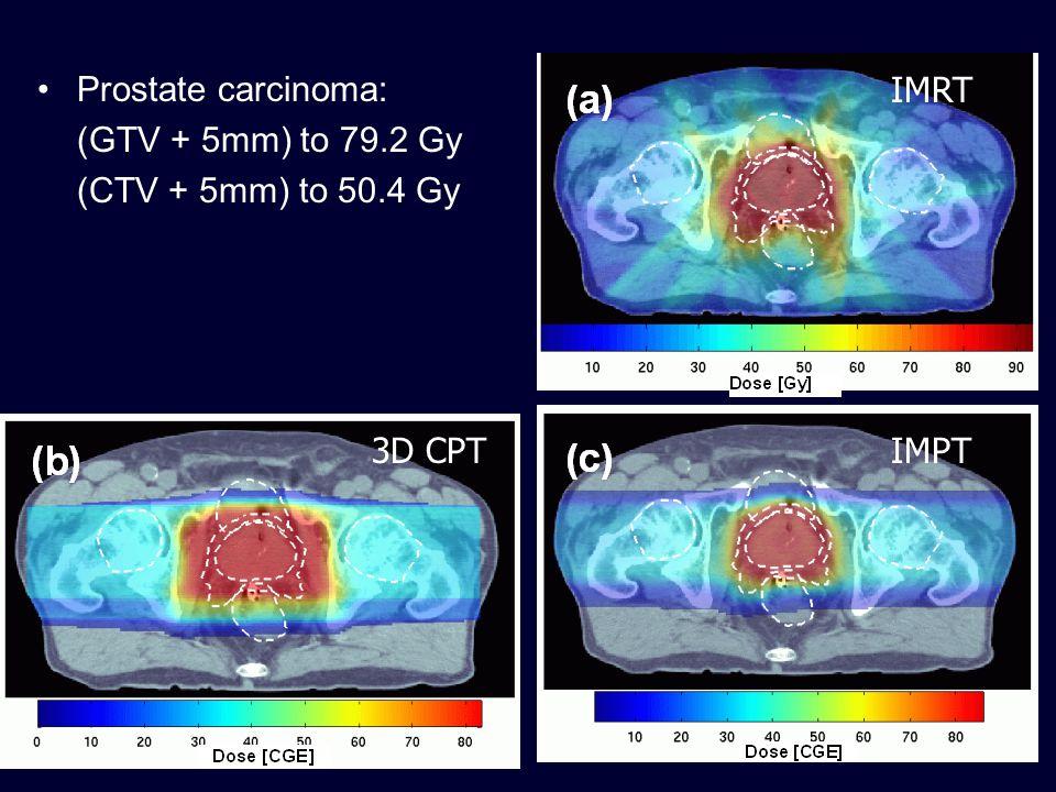 Prostate: IMRT vs 3D-CPT vs IMPT