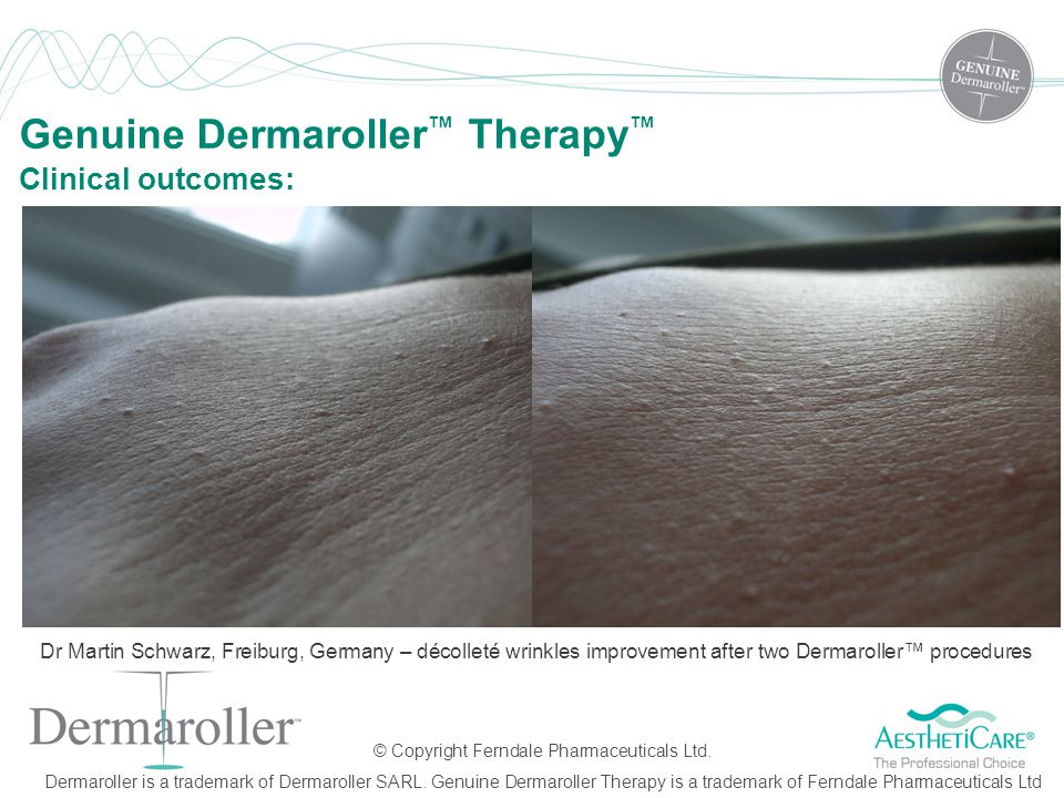 © Copyright Ferndale Pharmaceuticals Ltd. Dermaroller is a trademark of Dermaroller SARL. Genuine Dermaroller Therapy is a trademark of Ferndale Pharm
