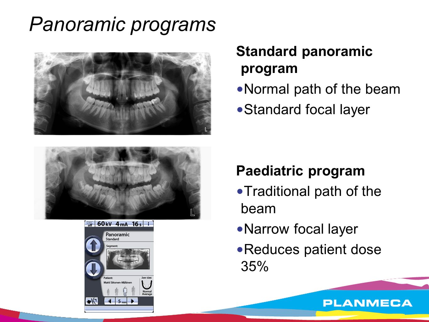 Panoramic programs Orthogonal panoramic program X-ray beam perpendicular to the jaw extremely valuable for implant planning helps to see crestal alveolar bone height to diagnose periodontal disease Interproximal panoramic program the X-ray beam and the interproximal contacts of the teeth are parallel the teeth do not overlap extremely useful for caries detection