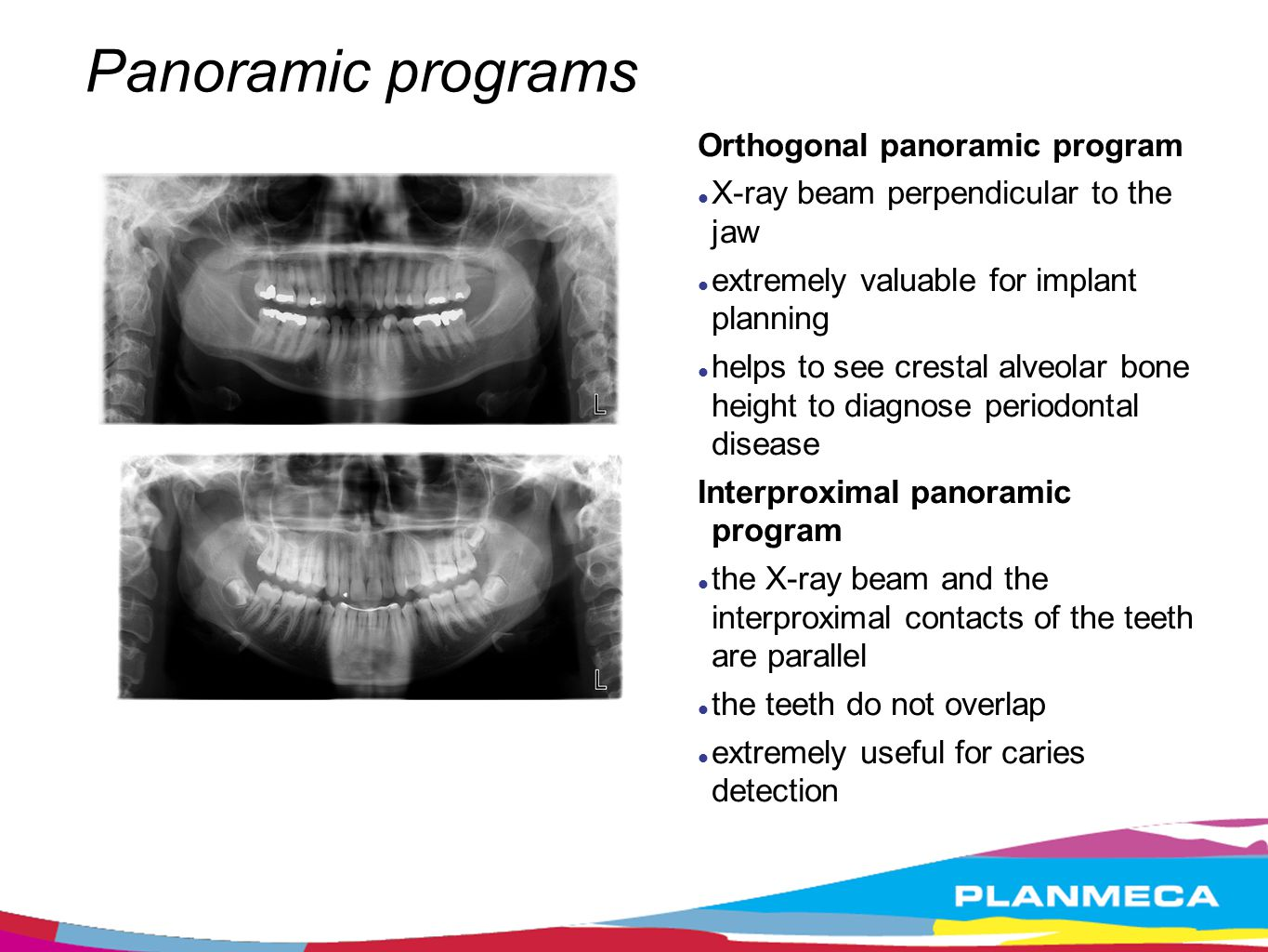 Interproximal program standard panoramicinterproximal panoramic Normal panoramic geometry teeth are overlapping Geometry improved according to the teeth interproximal angulation no overlapping