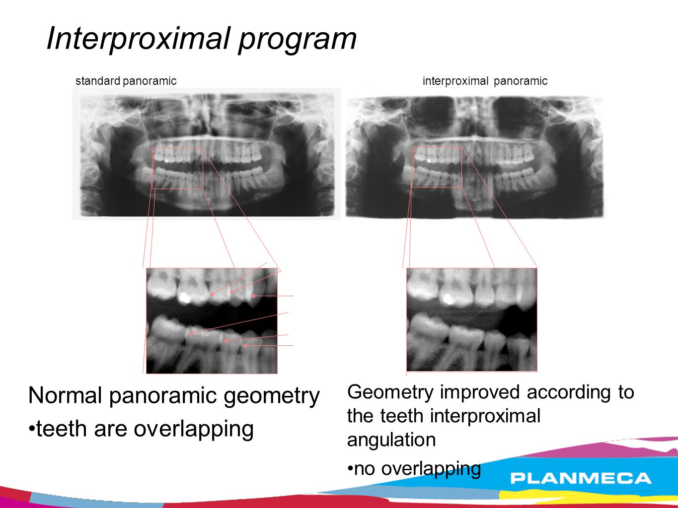 Interproximal program standard panoramicinterproximal panoramic Normal panoramic geometry teeth are overlapping Geometry improved according to the tee