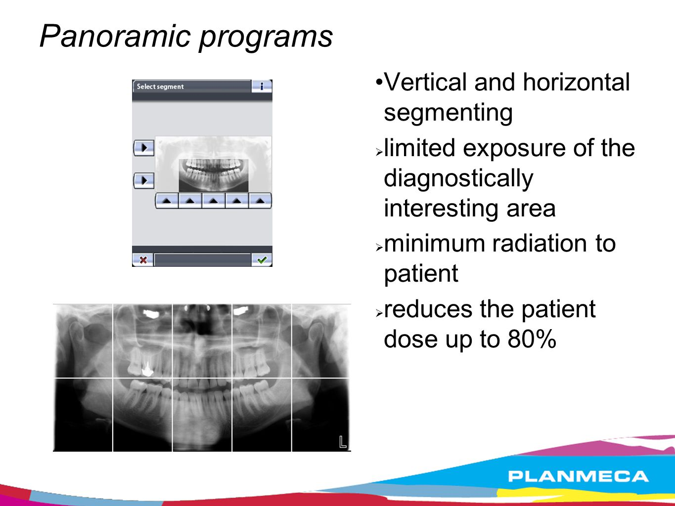 Functional exposure programs TMJ programs Double Lateral TMJ program * Double PA TMJ program * Double Latera- PA TMJ program** Lateral 3 angles TMJ program (left or right) ** * incl.