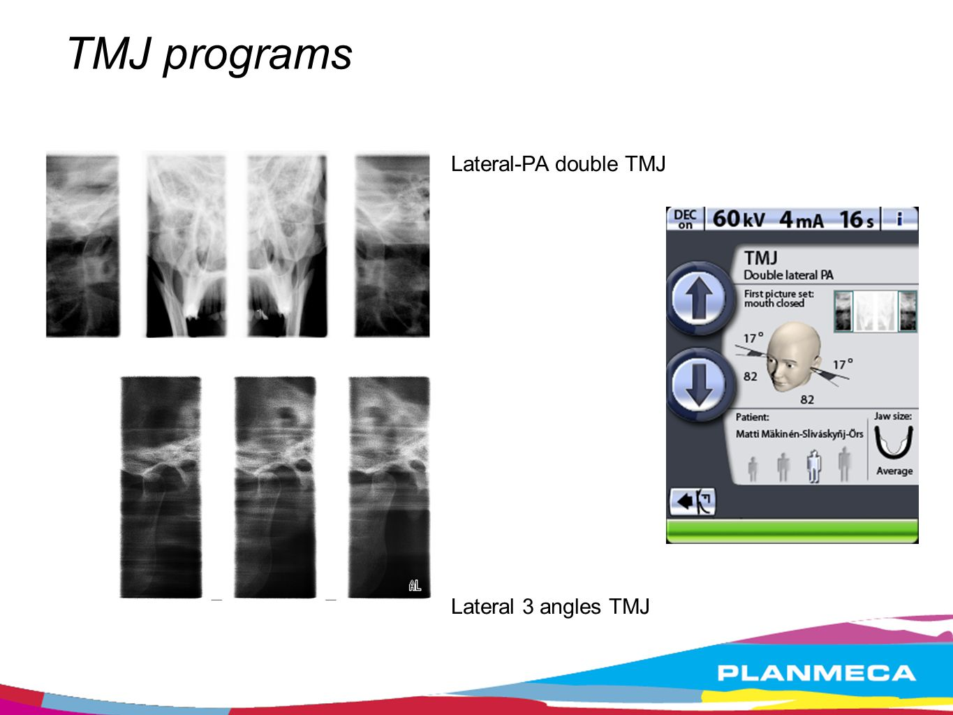 TMJ programs Lateral-PA double TMJ Lateral 3 angles TMJ