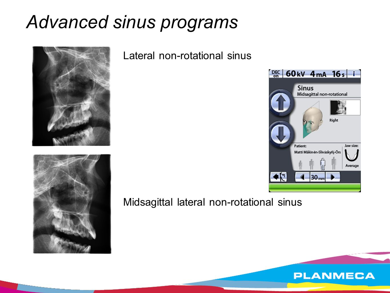 Advanced sinus programs Lateral non-rotational sinus Midsagittal lateral non-rotational sinus