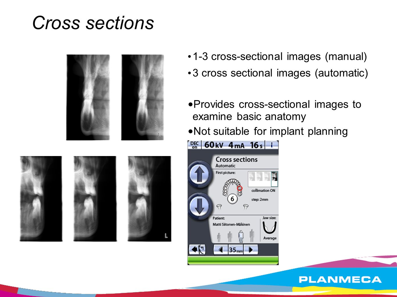 Cross sections 1-3 cross-sectional images (manual) 3 cross sectional images (automatic) Provides cross-sectional images to examine basic anatomy Not s