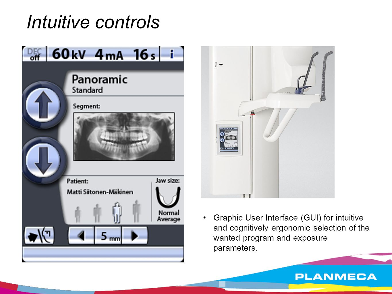 Intuitive controls Graphic User Interface (GUI) for intuitive and cognitively ergonomic selection of the wanted program and exposure parameters.