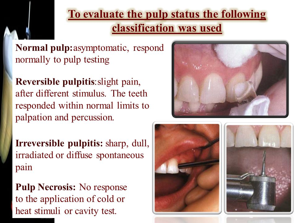 Normal pulp:asymptomatic, respond normally to pulp testing Reversible pulpitis:slight pain, after different stimulus.