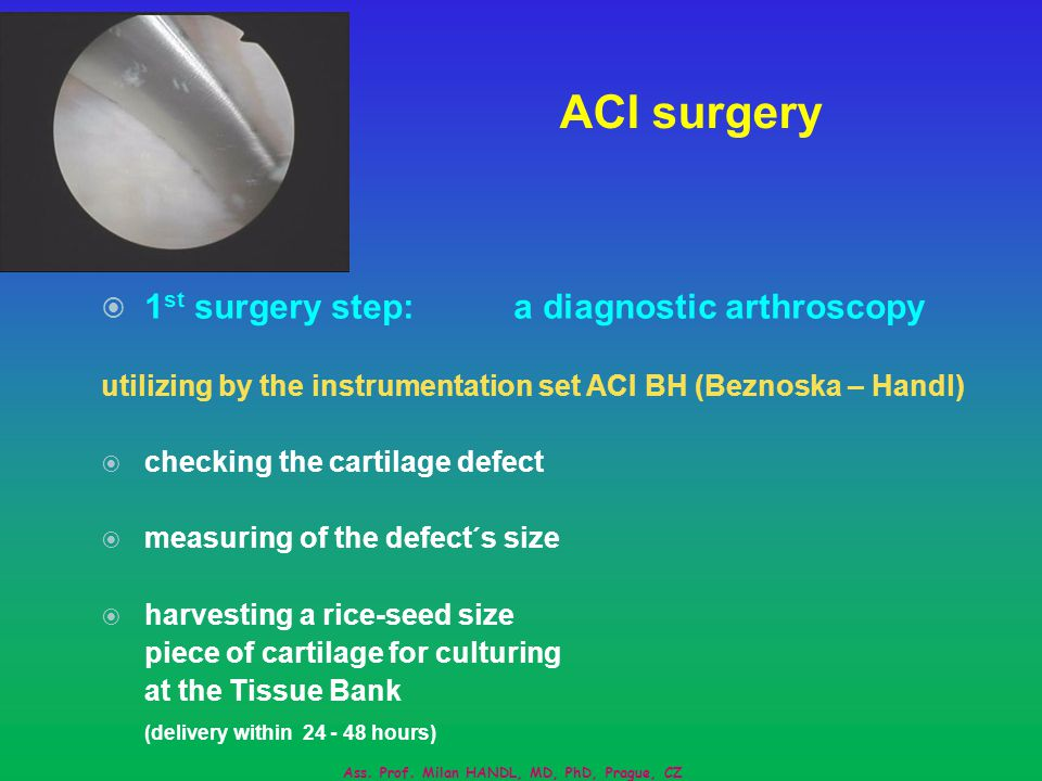 ACI surgery 1 st surgery step:a diagnostic arthroscopy utilizing by the instrumentation set ACI BH (Beznoska – Handl) checking the cartilage defect measuring of the defect´s size harvesting a rice-seed size piece of cartilage for culturing at the Tissue Bank (delivery within 24 - 48 hours) Ass.