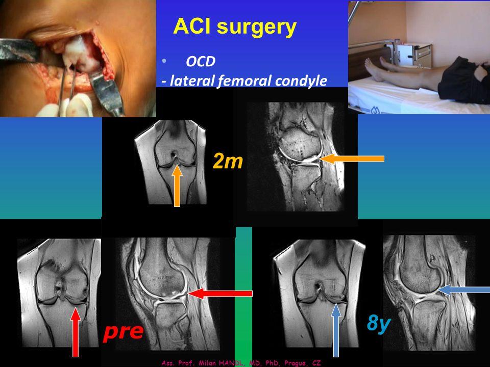 University Hospital Motol, Prague, CZ 8y 2m pre ACI surgery OCD - lateral femoral condyle Ass.