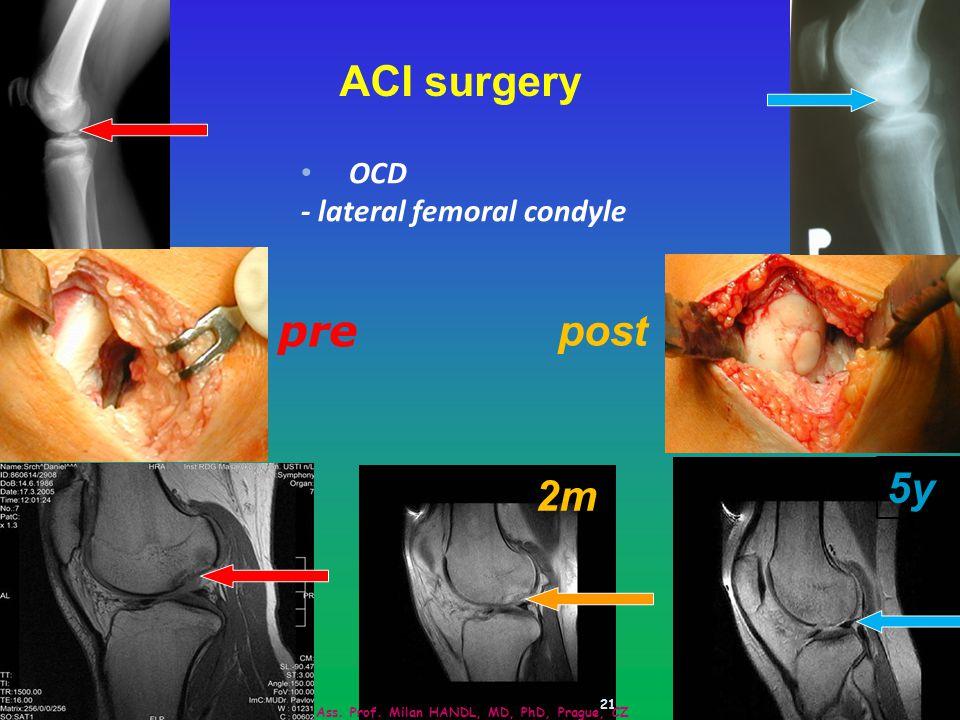 21 pre post 2m 5y ACI surgery Ass.Prof.