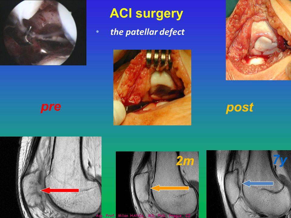 University Hospital Motol, Prague, CZ 23 ACI surgery the patellar defect pre post 2m 7y Ass.