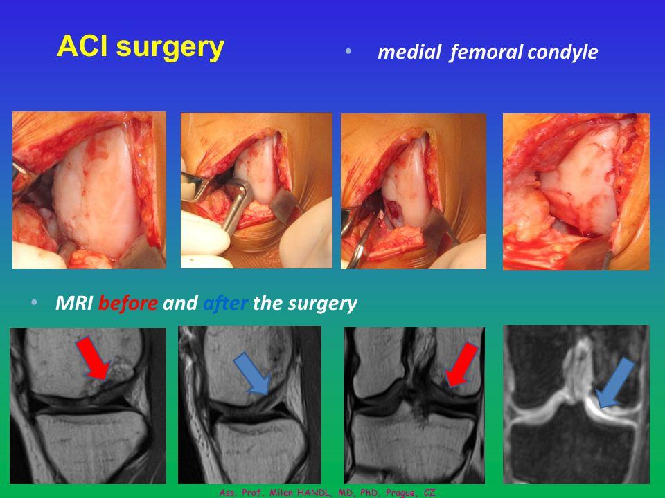 ACI surgery MRI before and after the surgery Ass.Prof.