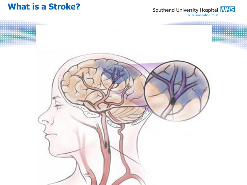 Stroke beds ring-fenced Consistently the highest performance for >90% stay on stroke unit across the East of England Bed occupancy year to date: o Acute stroke unit: 78% o Rehabilitation stroke unit: 88% First in the region for rehabilitation 7 day working Acute services