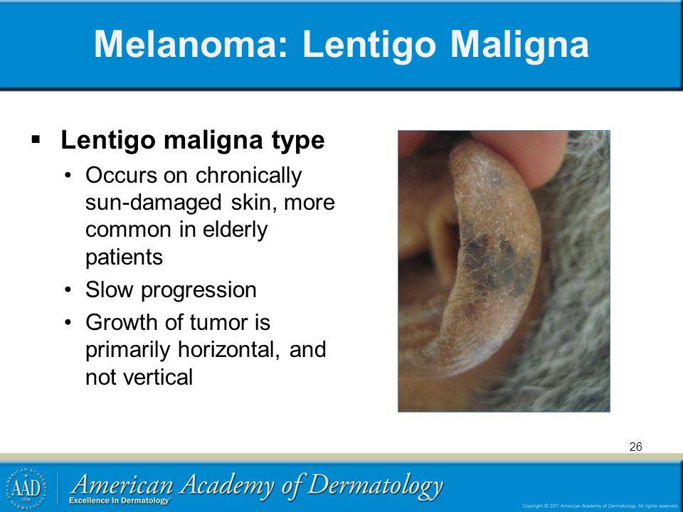 Melanoma: Lentigo Maligna Lentigo maligna type Occurs on chronically sun-damaged skin, more common in elderly patients Slow progression Growth of tumo