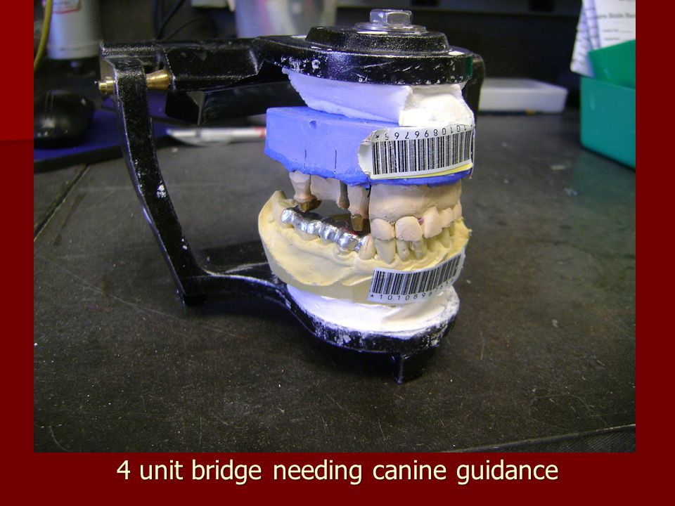 4 unit bridge needing canine guidance