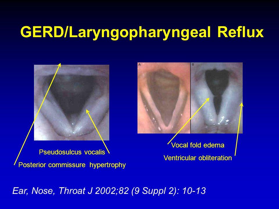 GERD/Laryngopharyngeal Reflux Ear, Nose, Throat J 2002;82 (9 Suppl 2): 10-13 Pseudosulcus vocalis Posterior commissure hypertrophy Vocal fold edema Ve