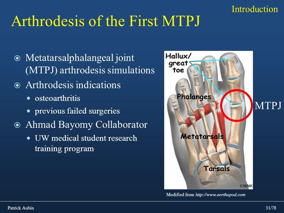 Patrick Aubin31/78 Metatarsalphalangeal joint (MTPJ) arthrodesis simulations Arthrodesis indications osteoarthritis previous failed surgeries Ahmad Ba