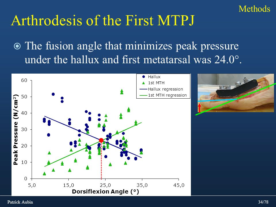 Patrick Aubin34/78 Arthrodesis of the First MTPJ The fusion angle that minimizes peak pressure under the hallux and first metatarsal was 24.0°. Method