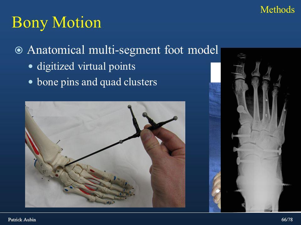 Patrick Aubin66/78 Bony Motion Anatomical multi-segment foot model digitized virtual points bone pins and quad clusters Methods