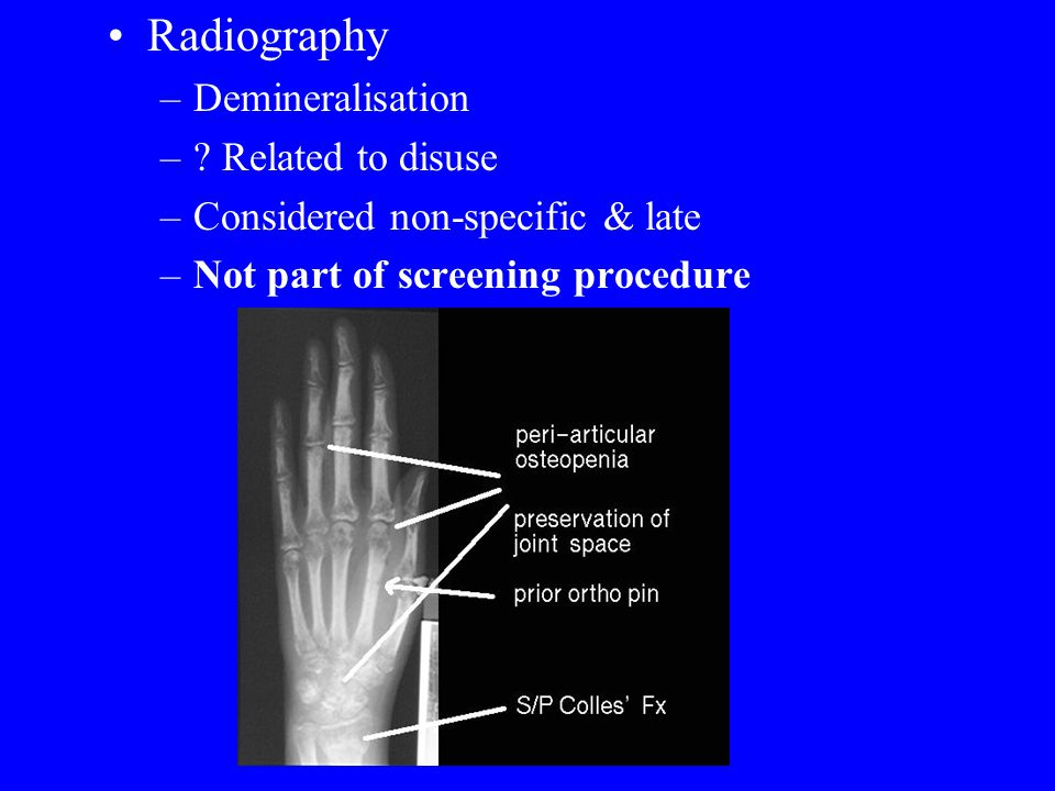 Radiography –Demineralisation –.