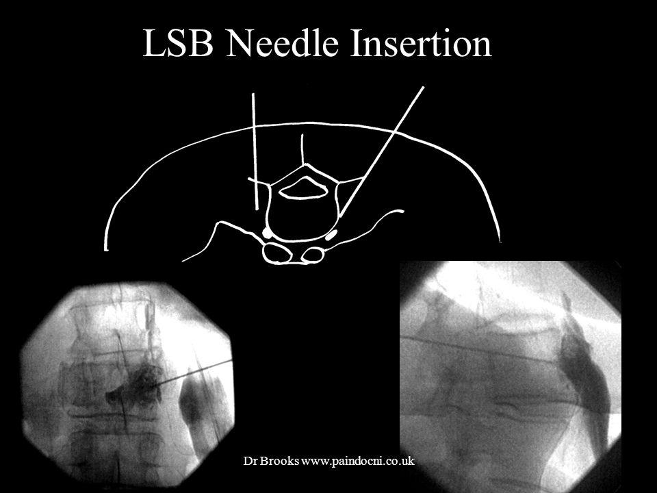 LSB Needle Insertion Dr Brooks www.paindocni.co.uk