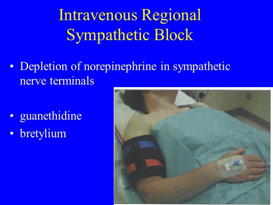 Intravenous Regional Sympathetic Block Depletion of norepinephrine in sympathetic nerve terminals guanethidine bretylium