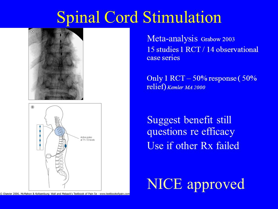 Spinal Cord Stimulation Meta-analysis Grabow 2003 15 studies 1 RCT / 14 observational case series Only 1 RCT – 50% response ( 50% relief) Kemler MA 2000 Suggest benefit still questions re efficacy Use if other Rx failed NICE approved