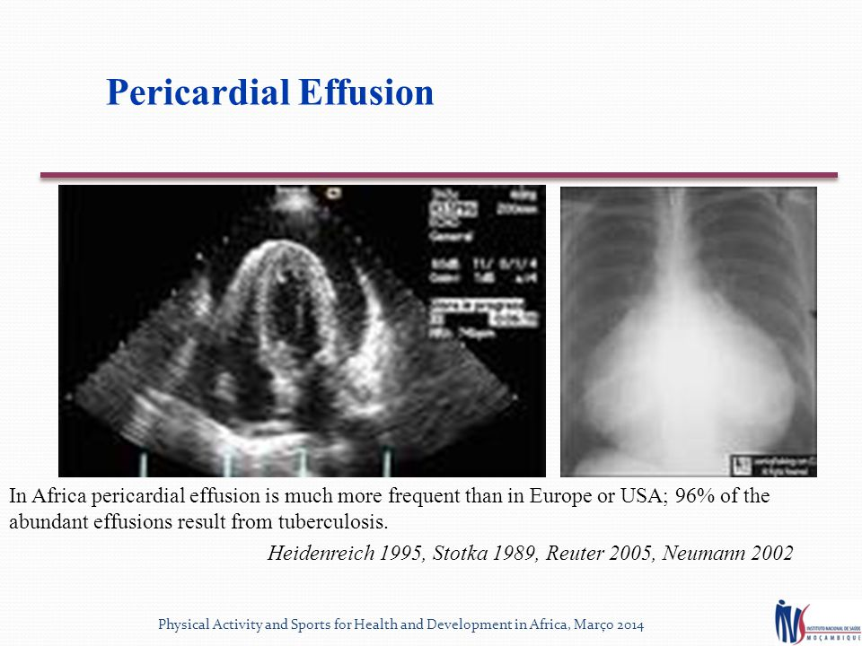 Pericardial Effusion In Africa pericardial effusion is much more frequent than in Europe or USA; 96% of the abundant effusions result from tuberculosis.
