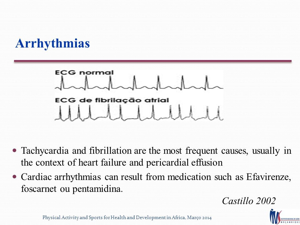 Arrhythmias Tachycardia and fibrillation are the most frequent causes, usually in the context of heart failure and pericardial effusion Cardiac arrhythmias can result from medication such as Efavirenze, foscarnet ou pentamidina.