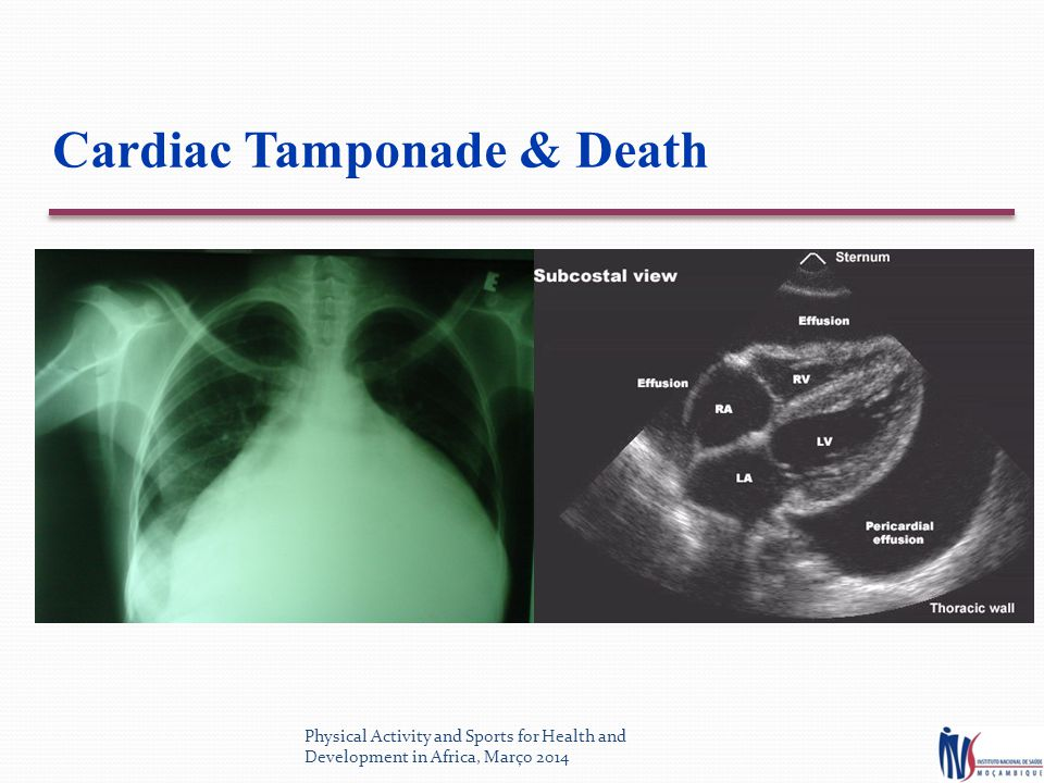 Cardiac Tamponade & Death Physical Activity and Sports for Health and Development in Africa, Março 2014