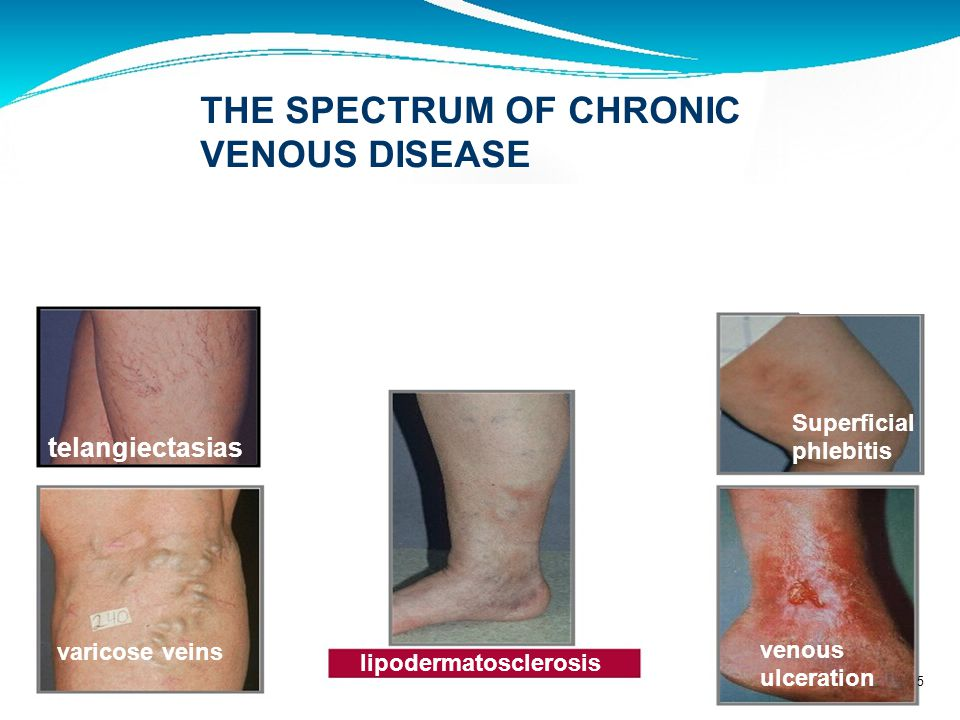 Presenting Symptoms of Chronic Venous Disease Aching 17percent Cramping-14 Tired legs-12 Swelling-12 Heaviness-12 Itching -6 Restless legs-6