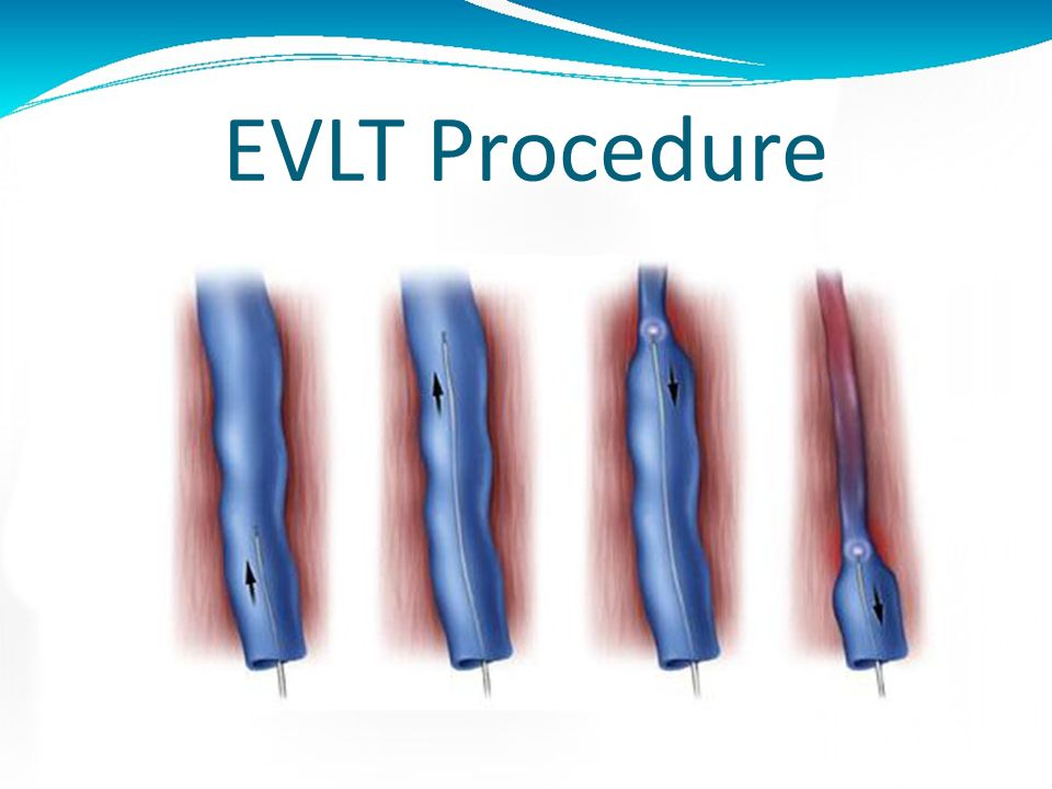 EVLT Procedure A catheter is placed in the vein through a needle utilizing ultrasound guidance The laser is passed through the catheter to the sapheno
