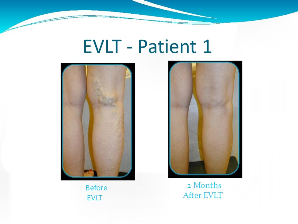 EVLT Post-op Mild Bruising can occur along the leg that has been treated A tightening sensation along the vein is reported by many patients Some mild