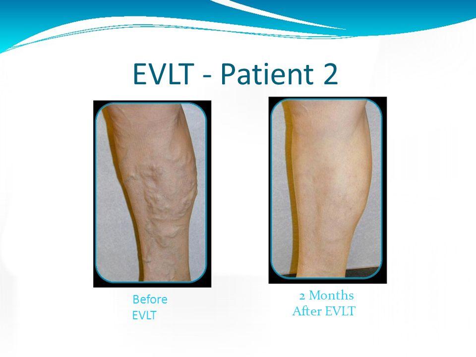 EVLT - Patient 1 Before EVLT 2 Months After EVLT