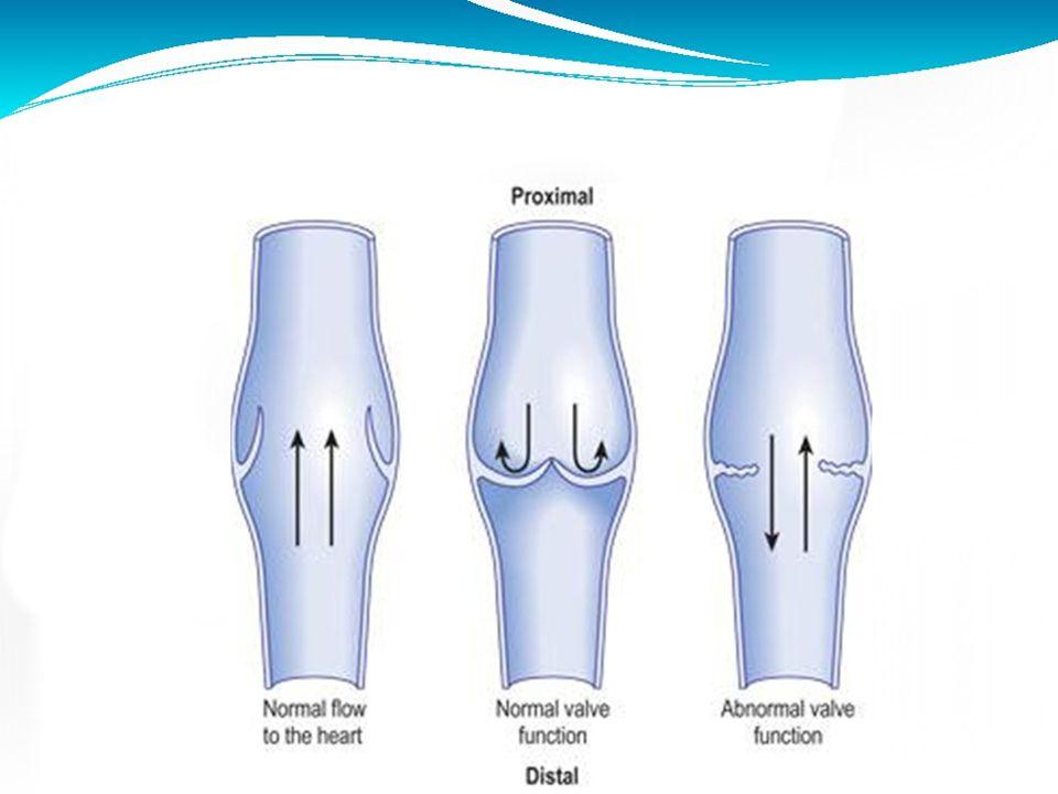 Venous Anatomy