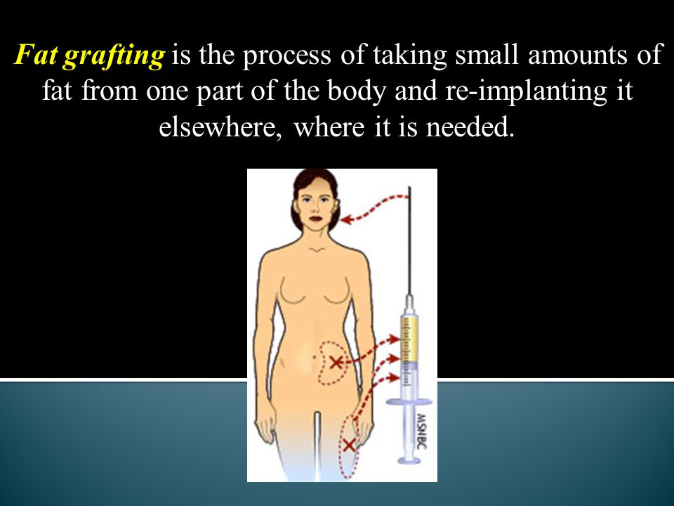 Fat grafting is the process of taking small amounts of fat from one part of the body and re-implanting it elsewhere, where it is needed.