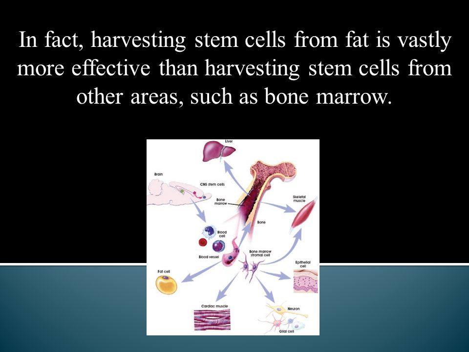 In fact, harvesting stem cells from fat is vastly more effective than harvesting stem cells from other areas, such as bone marrow.