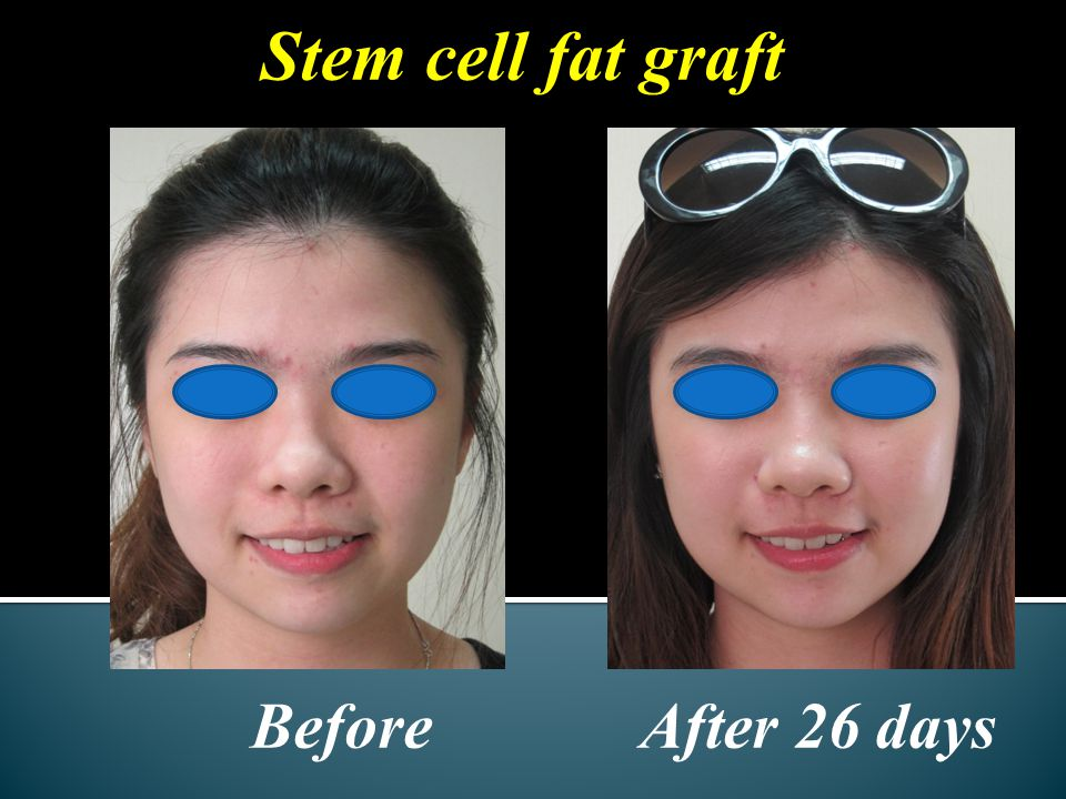 Before After 26 days Stem cell fat graft