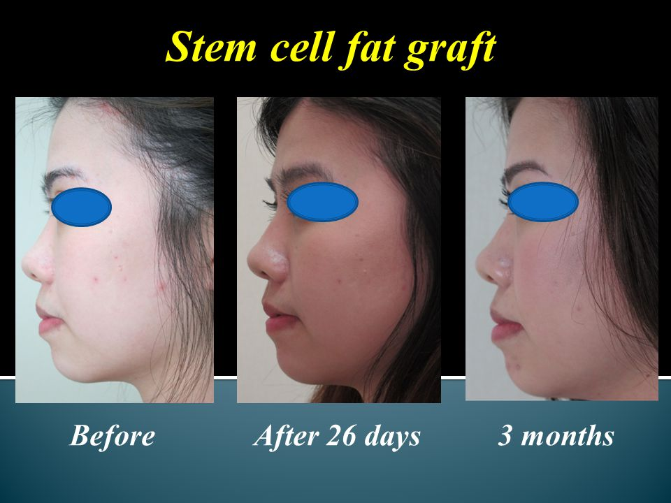 Before After 26 days 3 months Stem cell fat graft