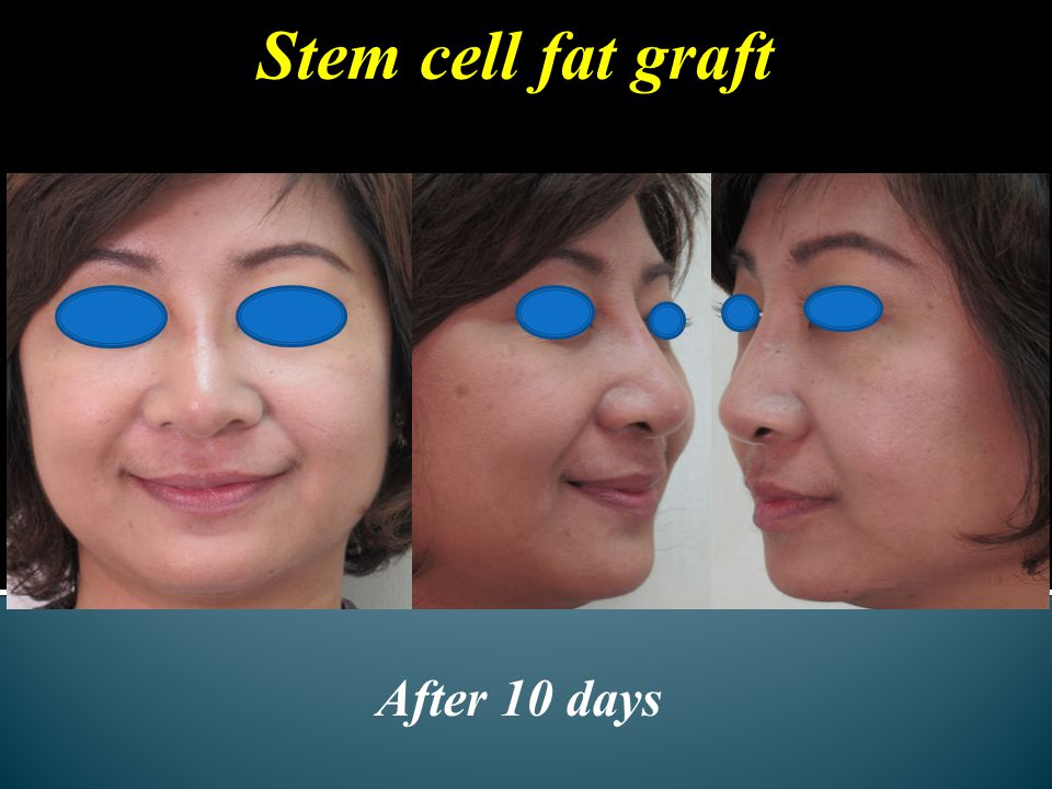 Stem cell fat graft After 10 days