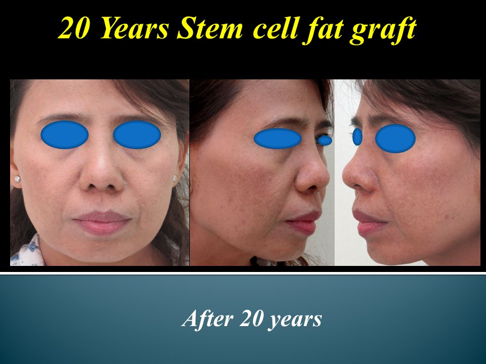 20 Years Stem cell fat graft After 20 years