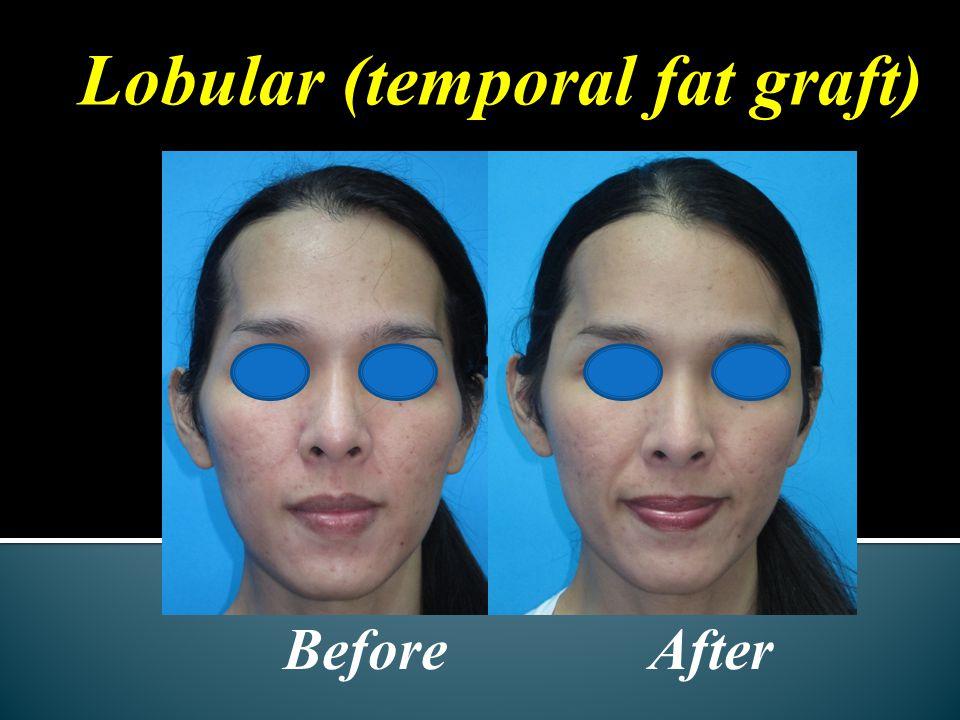 Lobular (temporal fat graft) Before After