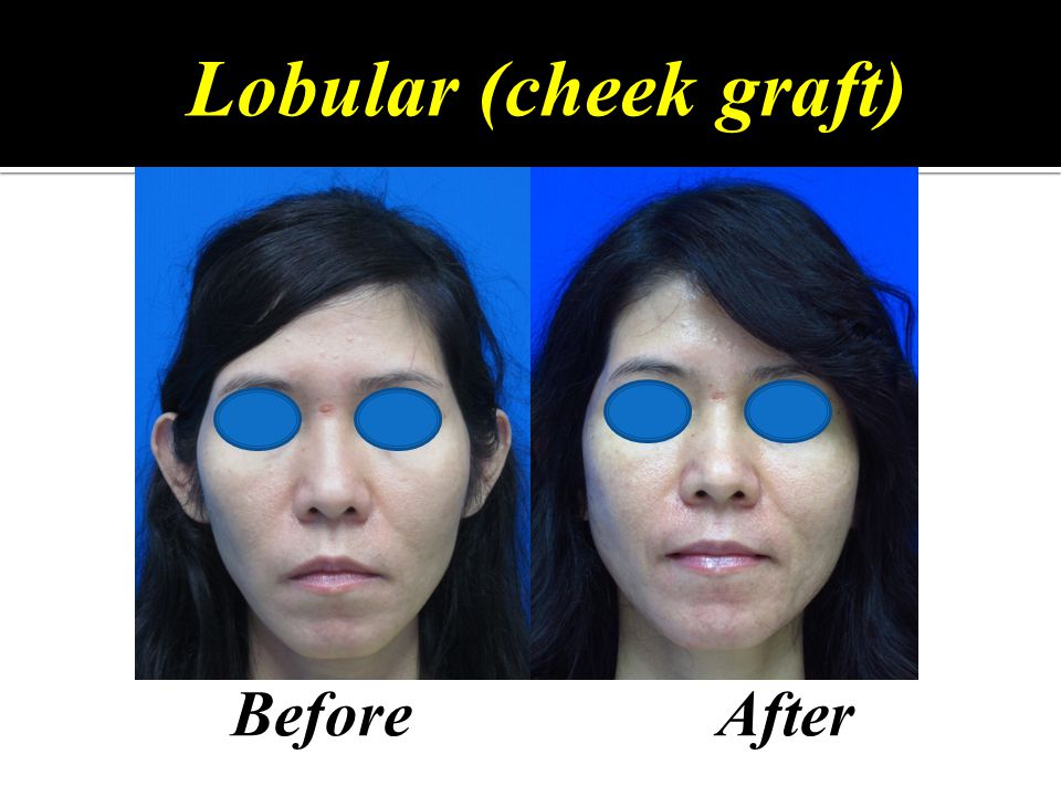 Lobular (cheek graft) Before After