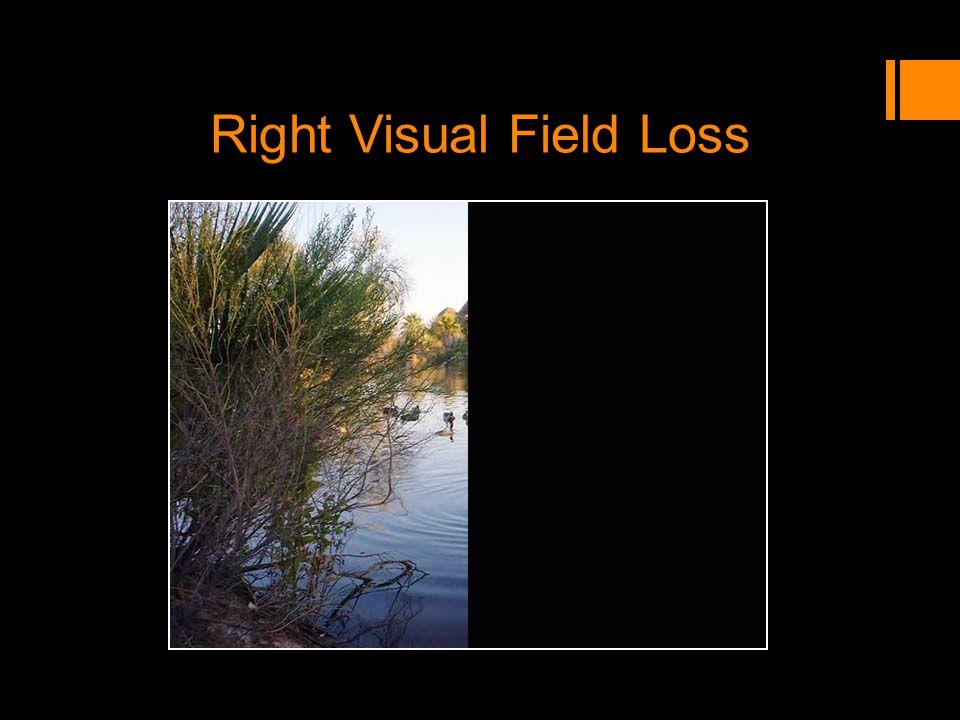 Right Visual Field Loss