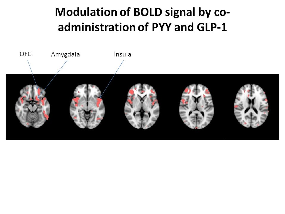 Modulation of BOLD signal by co- administration of PYY and GLP-1 OFC AmygdalaInsula
