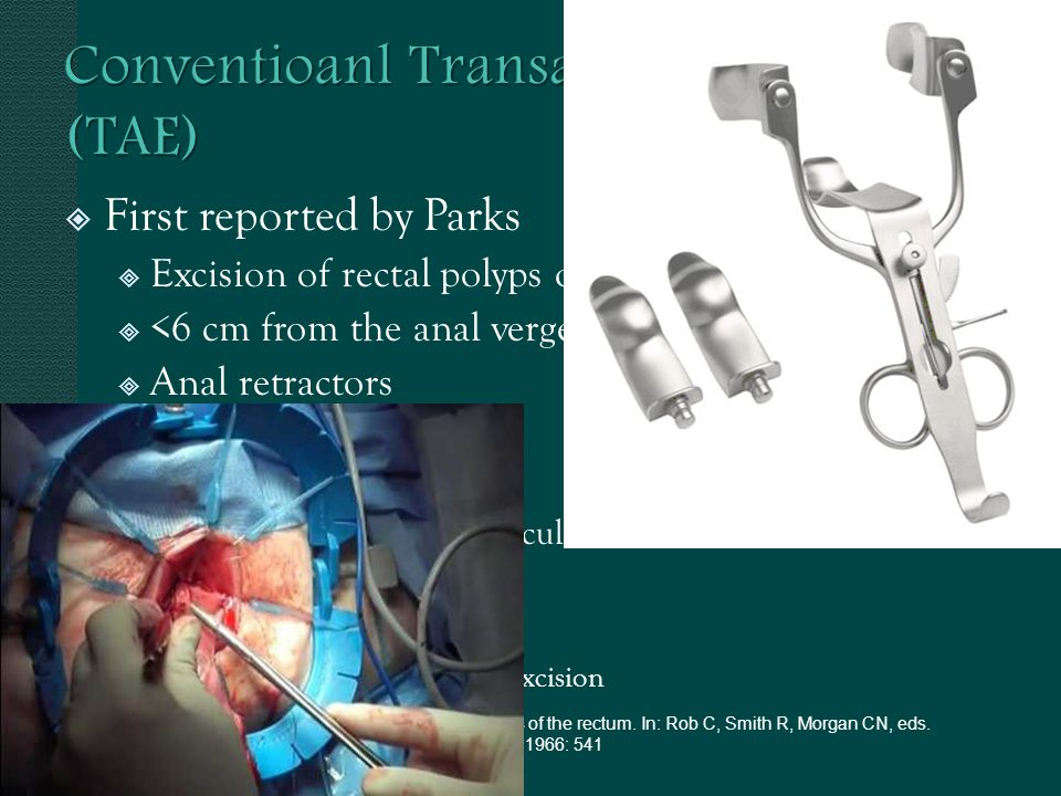First reported by Parks Excision of rectal polyps of any dimension <6 cm from the anal verge Anal retractors i.e.