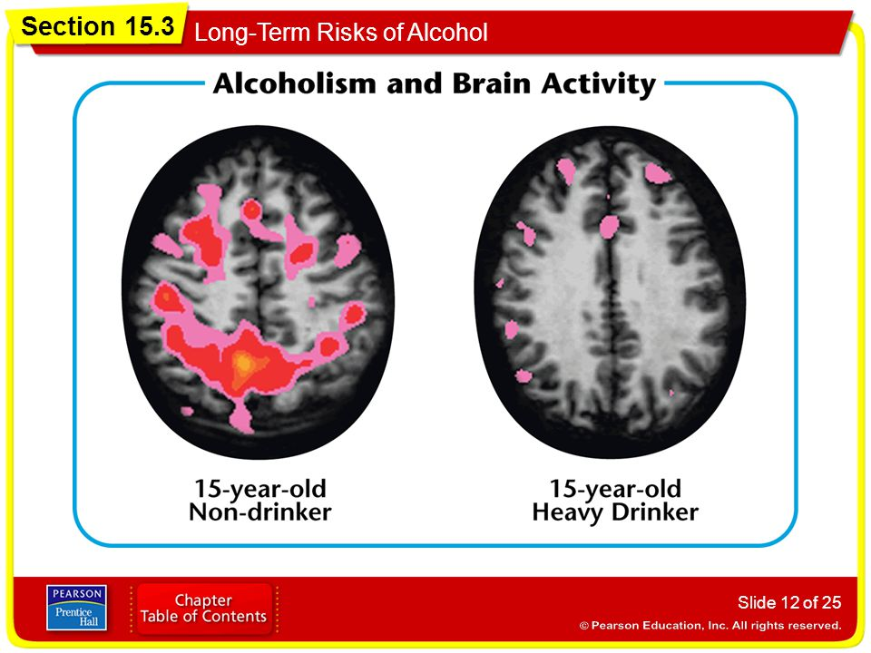 Section 15.3 Long-Term Risks of Alcohol Slide 12 of 25